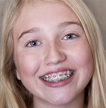 A young girl wearing braces.
