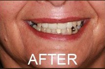 smile after teeth whitening