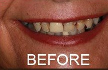smile before teeth whitening