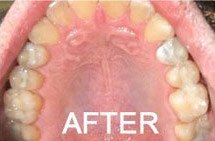patient 4 after silver fillings were removed