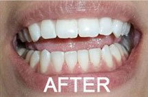 patient 5 smile after teeth whitening