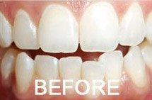 patient 5 smile before teeth whitening
