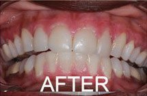 mile after gum disease has been treated