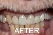 smile after porcelain veneers