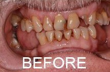 smile before porcelain veneers