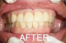 patient 1 smile after restorative surgery