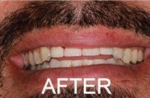 patient smile after dental crowns