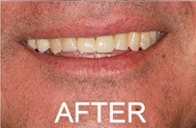 patient 3 smile after porcelain veneers