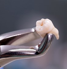 Extracted tooth in forceps