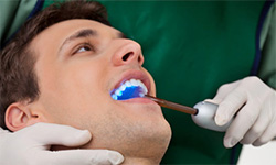 A man receiving dental fillings.