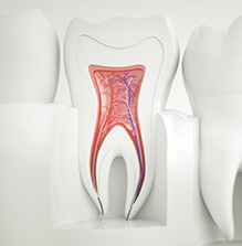 graphic representation of a tooth filled with pulp